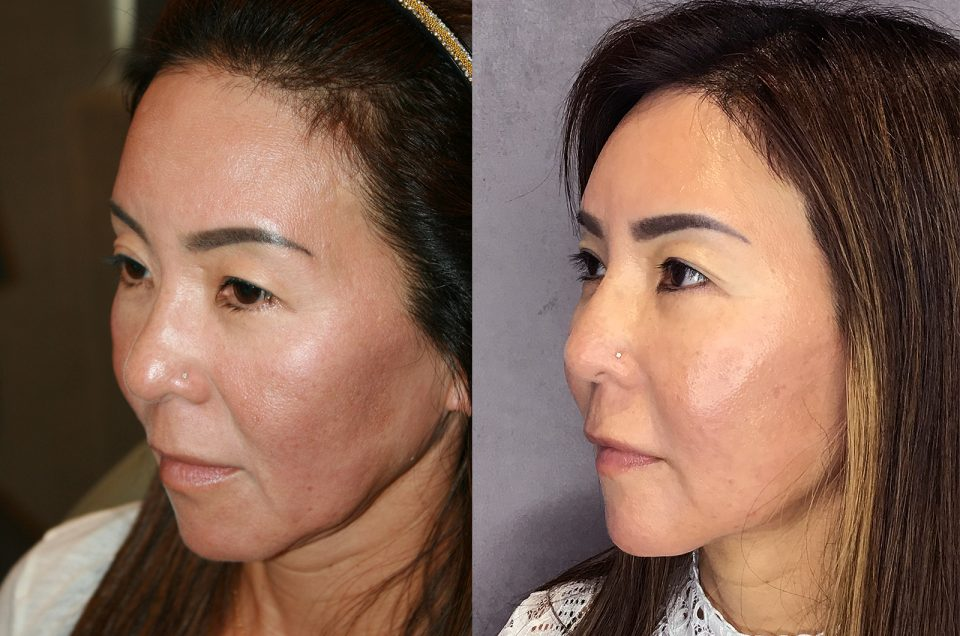 Patient Review:50 year old patient Thread lifting, Fat Transfer and Lower Eyelid fat bag removal