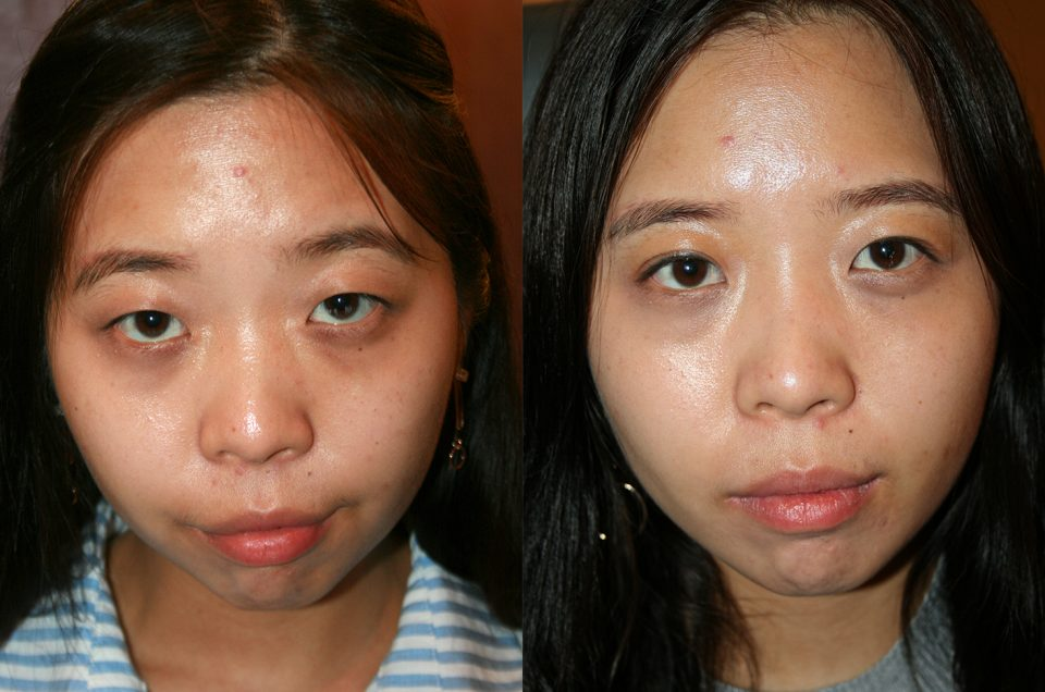 Patient Review:: 28 yrs old female patient Asian double upper eyelid